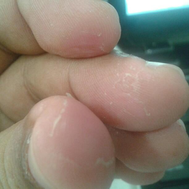 Quemaduras de alicina